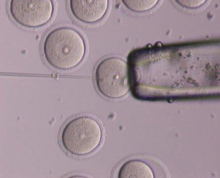 ova + egg cells+